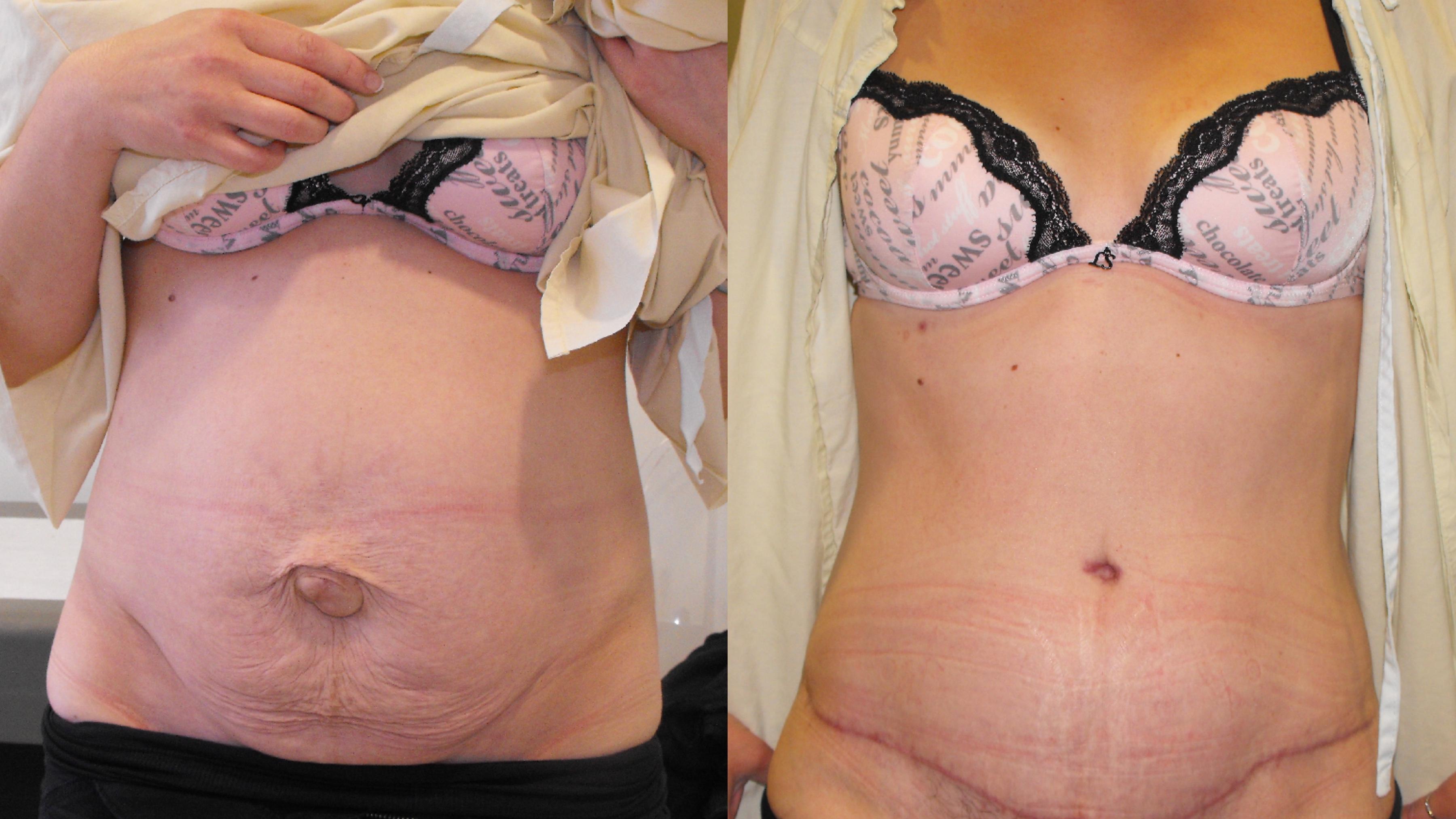 Tummy Tuck (Abdominoplasty) - Markham Institute of Cosmetic